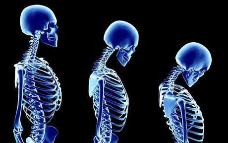 osteoporosisartwor_1704143c
